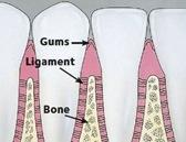 healthy_gums