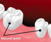 Before the bridge, teeth are shown with the space where a tooth has been lost.