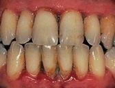 periodontisis