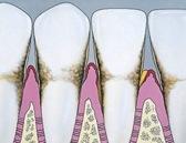 periodontisis2