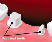 Teeth next to the gap are prepared for placement of the bridge.
